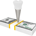 Dental implants may cost more than other tooth restoration treatments
